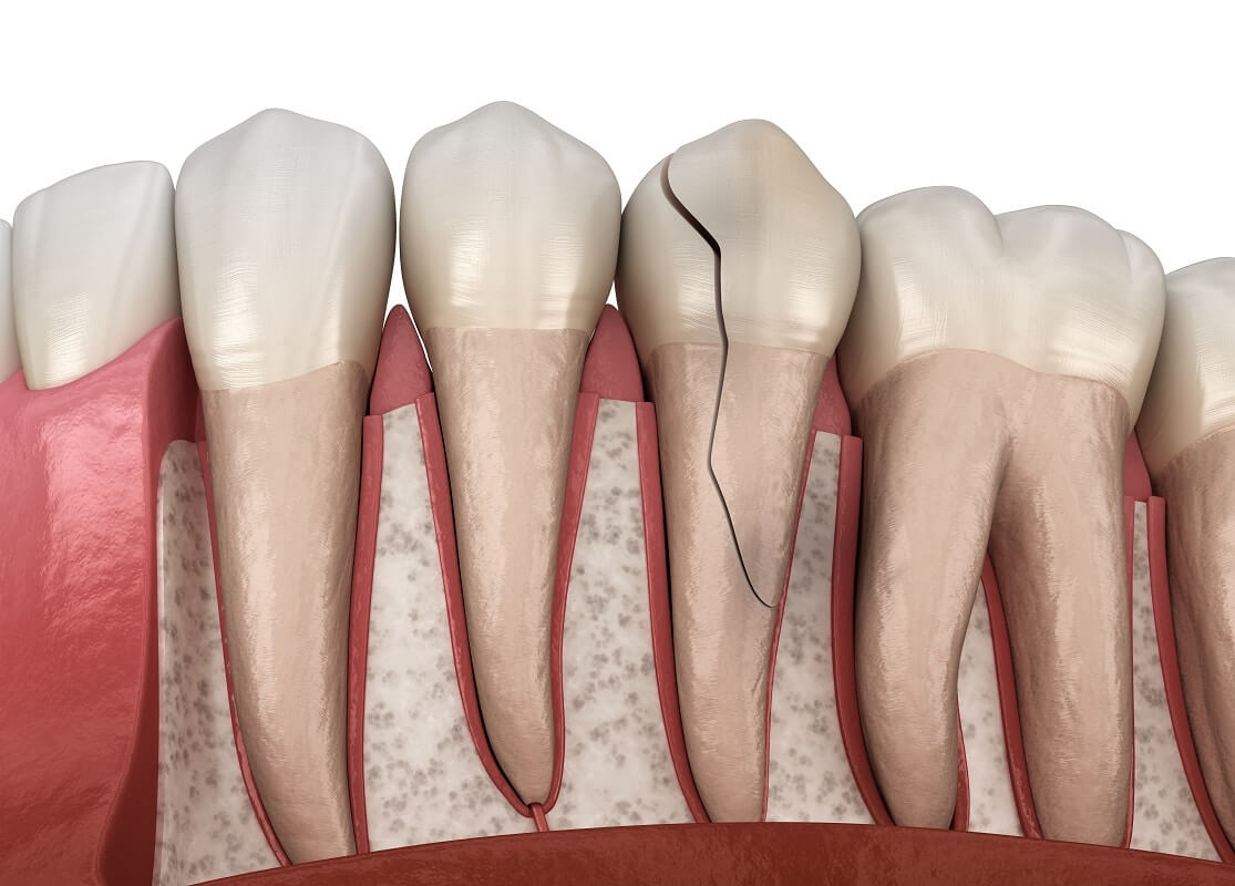 What To Do When You Crack Your Tooth