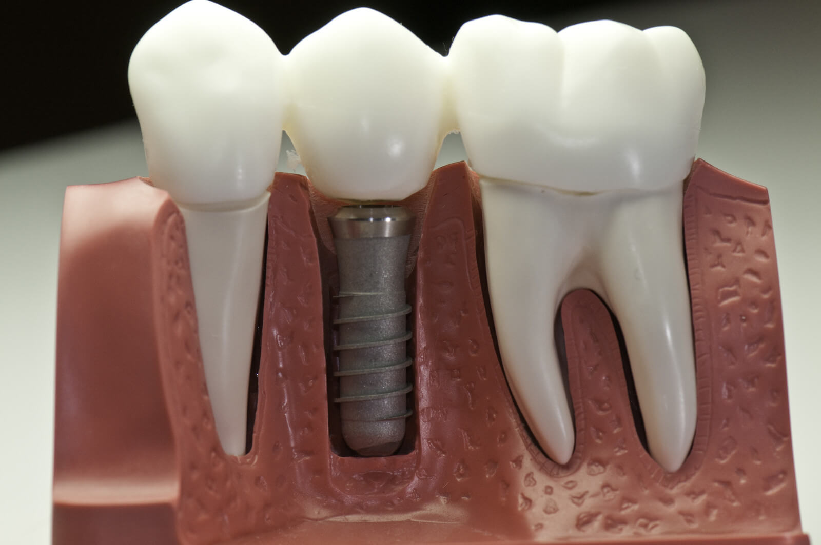 what-makes-dental-implants-the-gold-standard